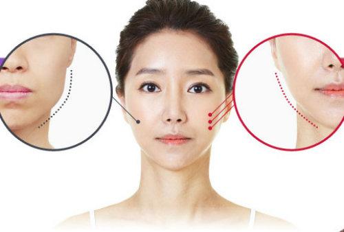 Top những phương pháp phẫu thuật thẩm mỹ được chú ý nhất 2015