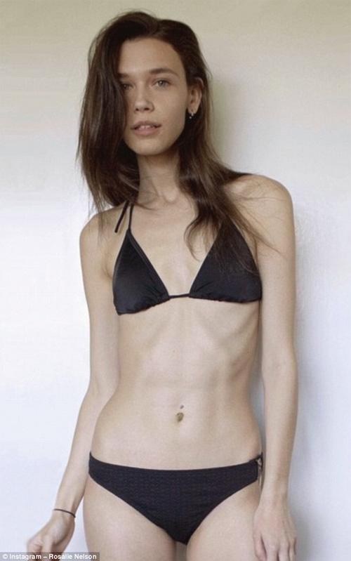 Người mẫu gầy 17 tuổi vẫn bị ép giảm cân gây bức xúc