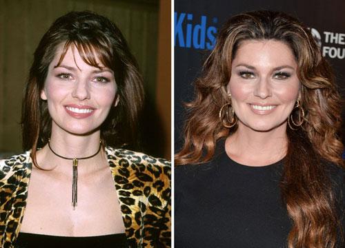 Sao hollywood trước và sau sửa mũi tiêm botox