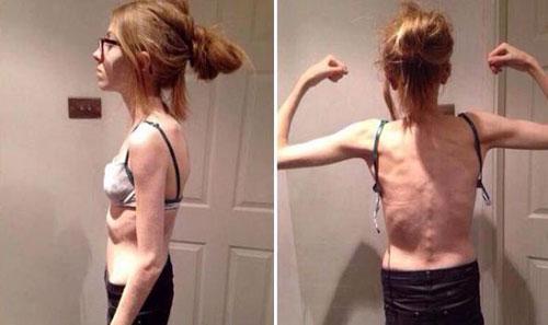nghiện ăn kiêng cô gái 15 tuổi chỉ còn da bọc xương