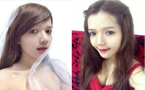 Những cô gái mạnh dạn công khai phẫu thuật thẩm mỹ