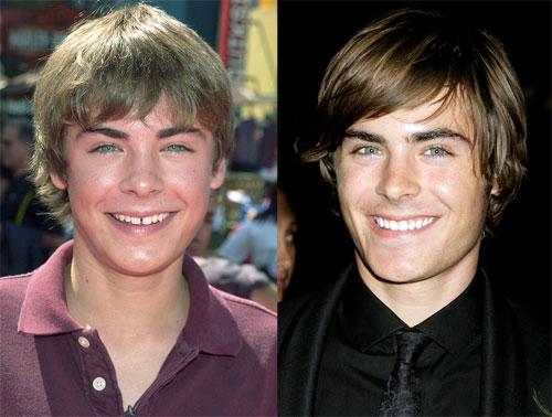 Những ngôi sao hollywood đẹp hơn chỉ nhờ chỉnh răng